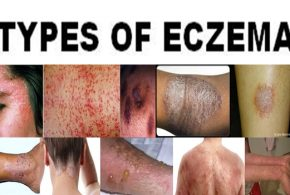MORE ABOUT ECZEMA: ITS TRIGGERS & TYPES