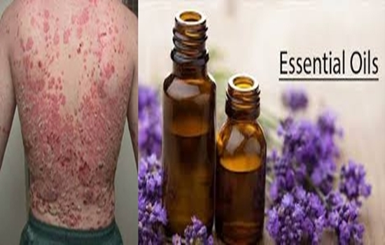 Heal Psoriasis with the Power of These 5 Amazing Essential Oils
