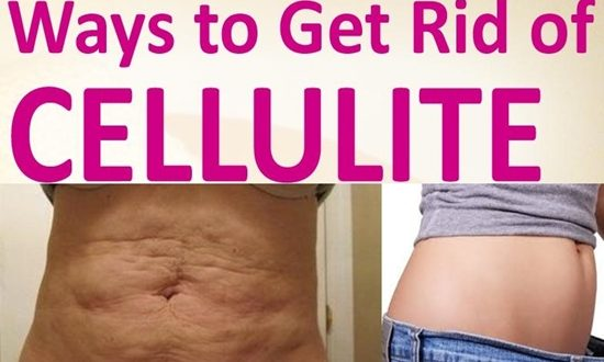 NATRUAL REMEDIES TO GET RID OF CELLULITE