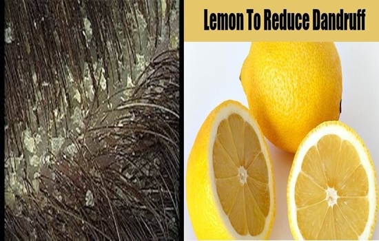 Natural Dandruff Treatments All Made of Lemon