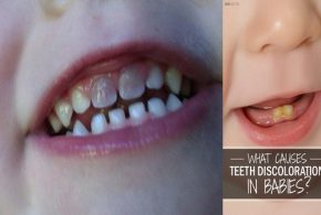 6 Reasons Why Your Baby's Teeth Are Discolored