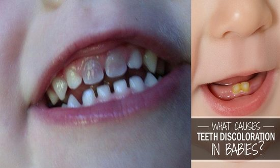Reasons Why Your Baby's Teeth Are Discolored