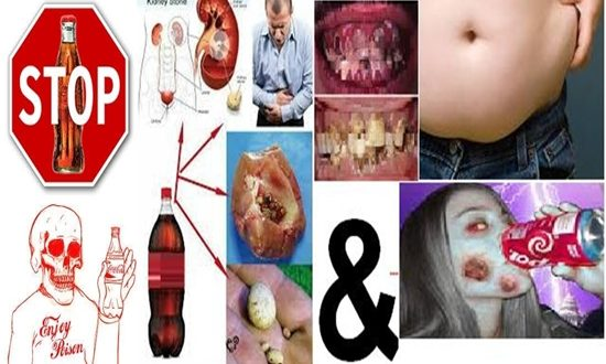 Reasons why you shouldn't drink cola