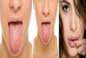 STRATEGIES FOR RELIEVING TOO LITTLE SALIVA OR DRY MOUTH - PART III