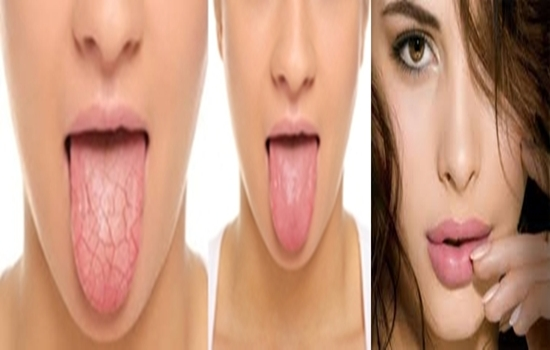 STRATEGIES FOR RELIEVING TOO LITTLE SALIVA OR DRY MOUTH