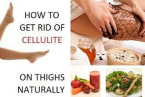 MORE ABOUT THE NATURAL REMEDIES TO GET RID OF CELLULITE, PART II