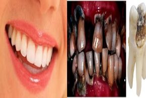 4 Unexpected Reasons Why You Have Poor Dental Health