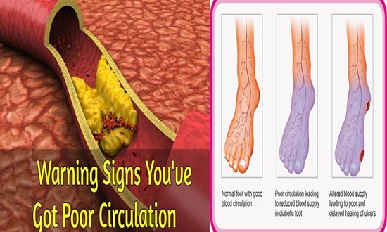 Warning Symptoms That Tell You That You Have Poor Blood Circulation