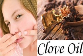 How Does Clove Oil Help With Acnes