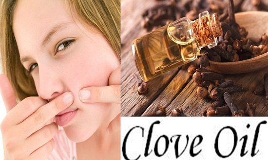 Clove Oil Help With Acnes