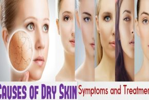 Dry Skin, Causes, Symptoms And Treatments