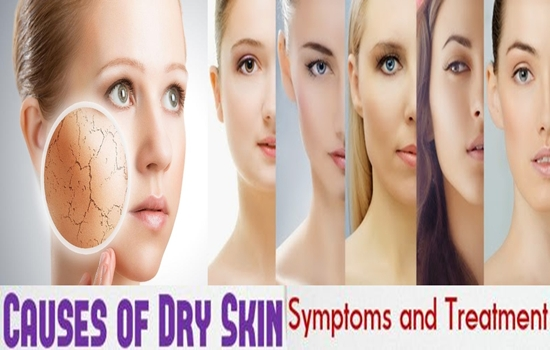 Dry Skin, Causes, Symptoms And Treatments.