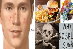 4 Types of Food You Should Omit from Your Diet to Prevent Acne