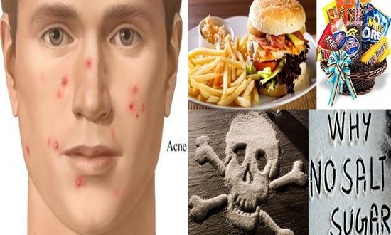 Food You Should Omit from Your Diet to Prevent Acne