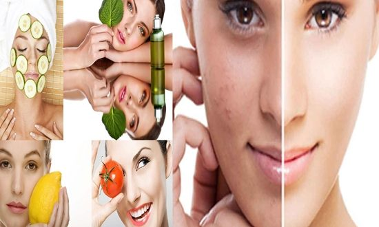 How To Prevent And Treat Acnes Naturally