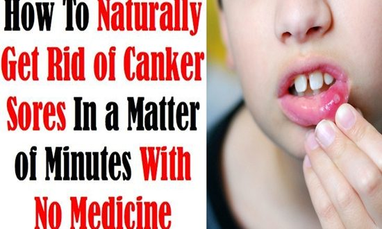 Natural Easy Treatments To Get Rid Of Mouth Ulcers Fast