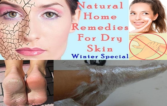 Tips for Treating Dry Skin Easily and Naturally