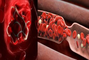 4 Important Facts about Blood Clots You Should Know