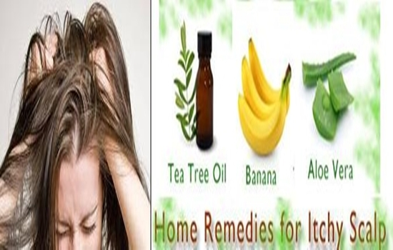 Having dry scalp Here are easy home remedies