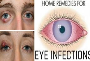Four Easy Home Remedies To Treat Eyelid Cysts