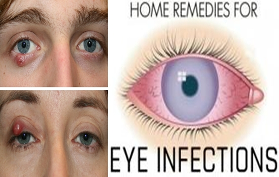 Home Remedies To Treat Eyelid Cysts