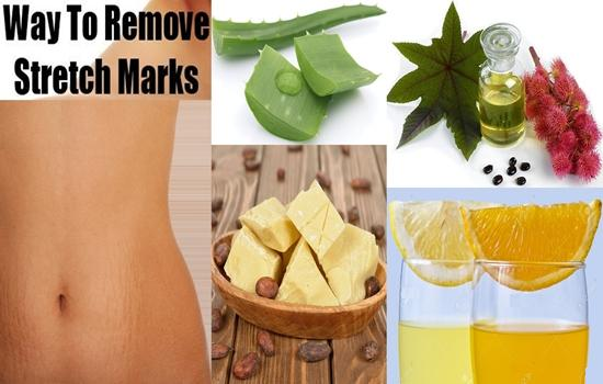 How To Fade Unattractive Stretch Marks With Home Remedies