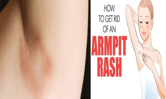 How To Get Rid Of Armpits Rashes Quickly