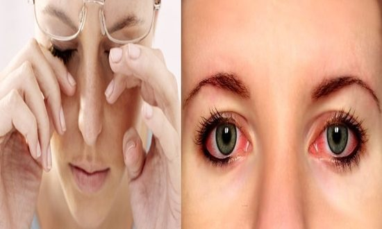 How to Prevent Eye Redness