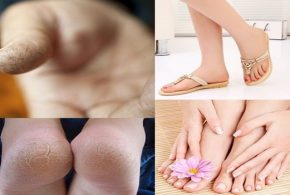 How to deal with cracked skin on your  Hands and feet