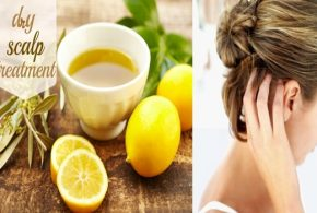 Natural remedies to treat dry scalp!
