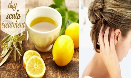 Natural remedies to treat dry scalp