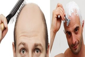 3 Important Tips to Follow when You Are Bald