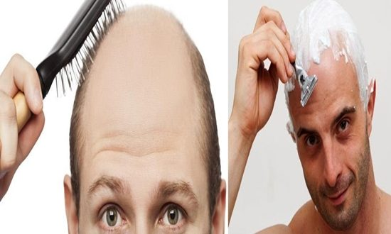 Tips to Follow when You Are Bald