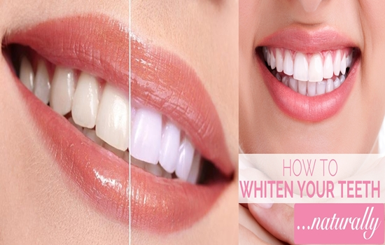 Whiten your teeth naturally