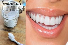 Apply this homemade paste for 14 days for whiter teeth!