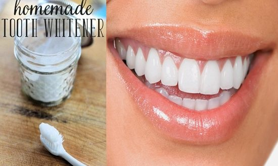 homemade paste for 14 days for whiter teeth