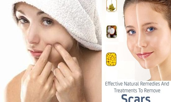 natural recipes will rid you of scars in no time