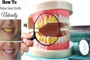 Troubled with your yellow teeth? Here's what you can do!