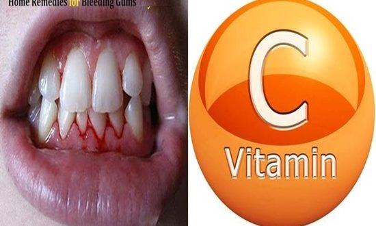 How to treat bleeding gums