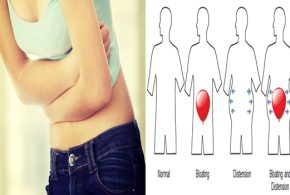 Natural treatments for bloating and swelling