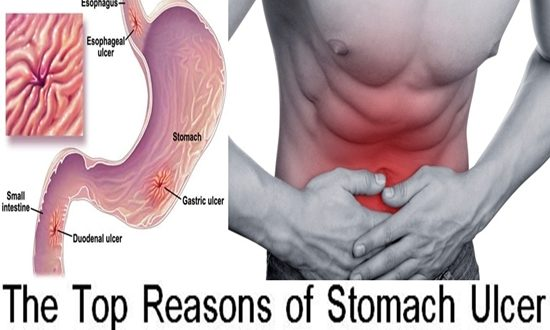 Reasons of Stomach Ulcer
