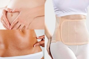 Tips To Flatten Your Tummy After Having A C-section