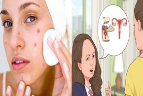 4 Ways to get rid of pimples that appear during your period