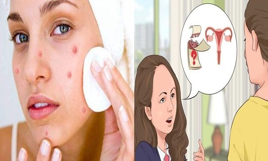 Ways to get rid of pimples that appear during your period