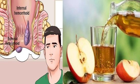 Hemorrhoids 24 Hours Natural Cure