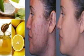 Home Remedies To Get Rid Of Burn Marks and Acne Scars