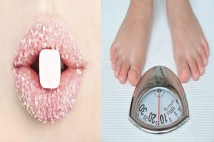 Signs You Are Eating Too Much Sugar