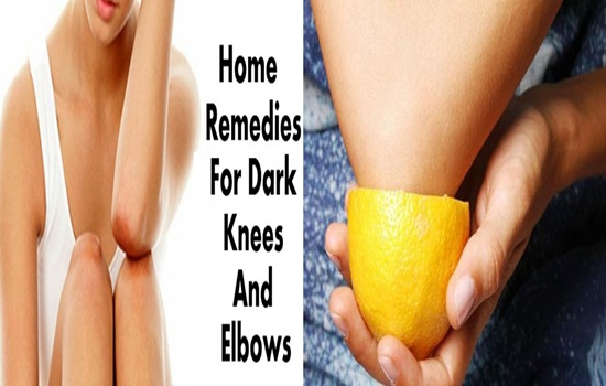 Home Remedies To Lighten Dark Elbows And Knees