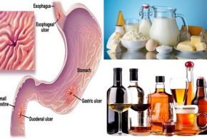 List of Foods to Avoid If You Have Stomach Ulcers.