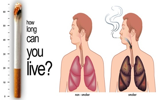 Pulmonary Diseases - How Tobacco Smoke Causes
